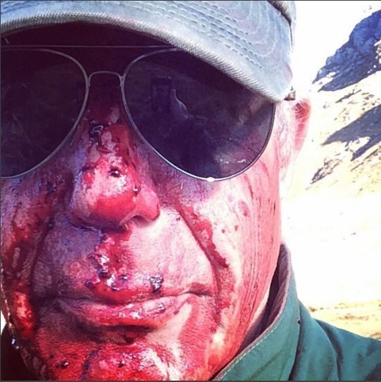 anthony bourdaines bloody face